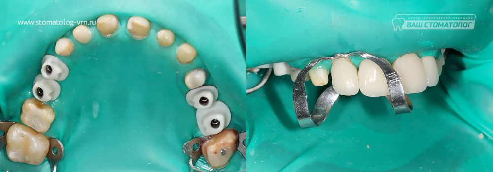 Клиника зубные протезы цены